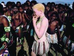 albino01g